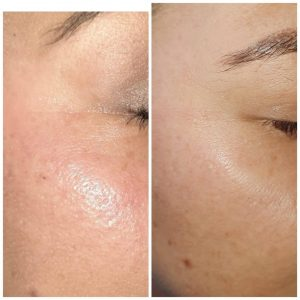 Plasma before and after